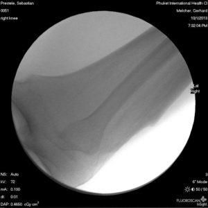 röntgen bild vom knie phuket